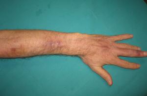Figura 3: Miembro afectado con mejoría casi total de las lesiones después del tratamiento antimicótico.