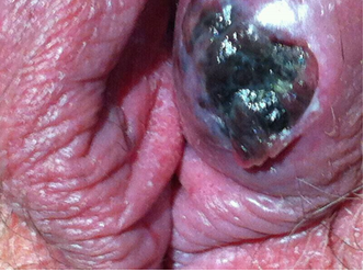 Lesiones de la vulva