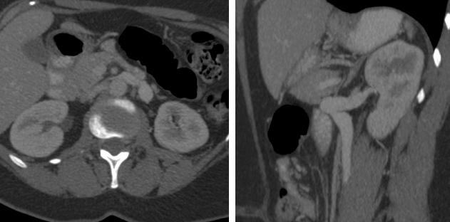 Figura 2.En el Tc tóraco-abdómino-pélvico se aprecian las varices de la vena ovárica izquierda, dilatada hasta su desembocadura en la vena renal izquierda por la compresión de la vena renal izquierda a su paso entre la horquilla formada entre la aorta y la salida de la arteria mesentérica superior.