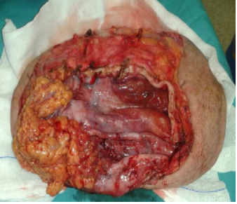 Figura 3. Saco herniario resecado con piel y tejido celular subcutáneo.