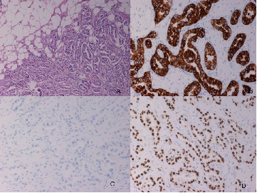 Fig. 3. Images of the histopathological analysis of the nodular lesion with different staining methods. A. Adenocarcinoma infiltrating adipose tissue of neck, HEx10. B. Positive cytoplasmic staining in neoplastic cells for CK7 (CK7x20). C. Negative for CK20 (CK20 x20). D. Nuclear positivity positive with TTF-1 (TTF-1 X20).