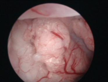 Figura 2. Endometrio engrosado con aumento de la vascularización (Imagen histeroscópica