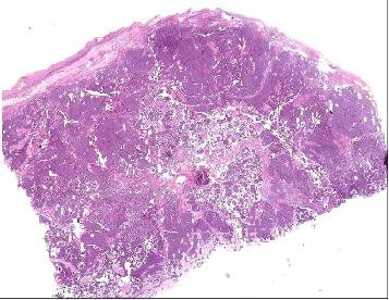 Figura 3. El anexo está infiltrado por una tumoración de células  monomorfas de núcleos ovalados, hendidos y nucleolos poco prominentes