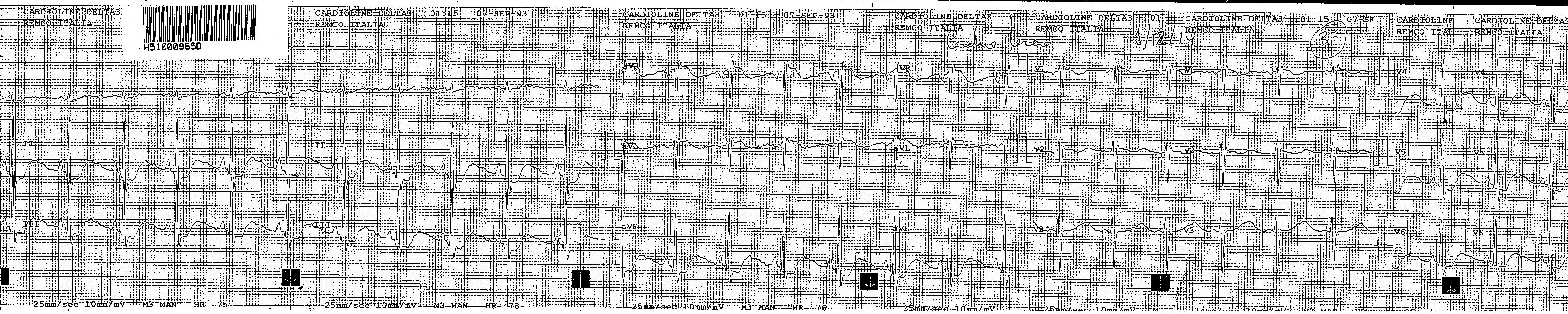Imagen 1: ECG: RS a 70 lpm, eje normal. Descenso de ST en II, III,  aVF , V4-V6. Ascenso en aVR.