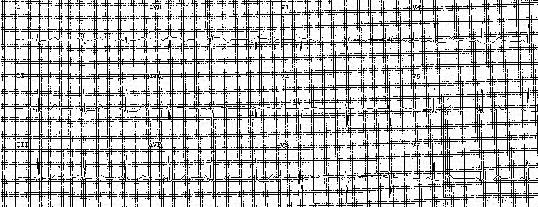 Imagen 2: ECG: RS a 70 lpm, eje normal. Sin alteraciones electrocardiográficas.