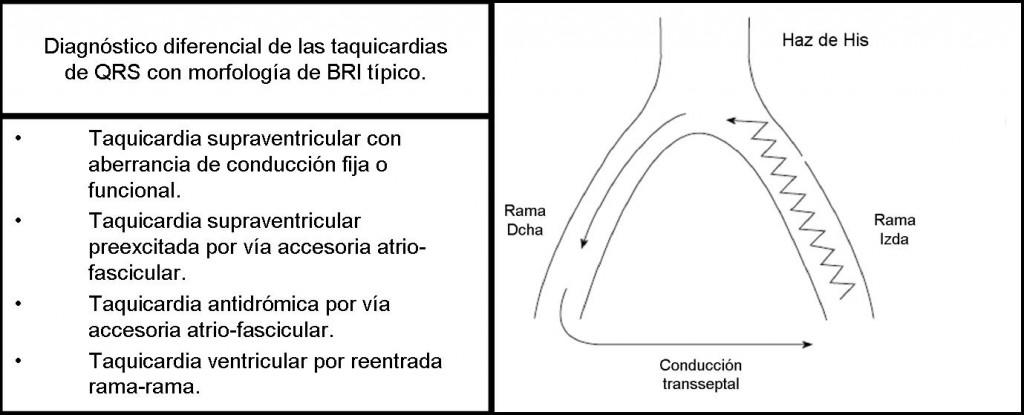 4.3 CASO CLINICO-Figura 3 Esquema